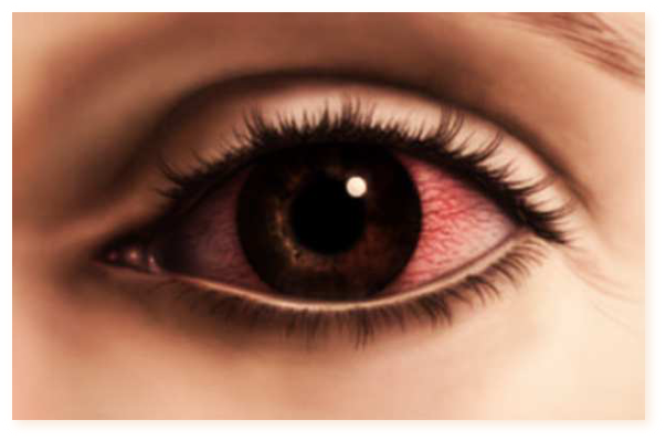 Cheratita - simptome, cauze, tratament