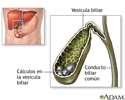 Colelitiasis (piedras en la vesicula biliar). Tratamiento | Juan ...
