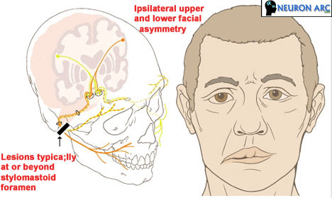 Nerve involvement (affected) in Bell`s Palsy
