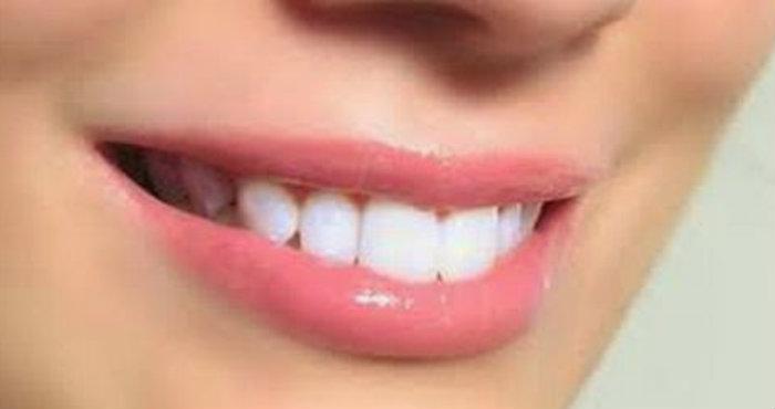 Cara Alami Untuk Menipiskan Bibir