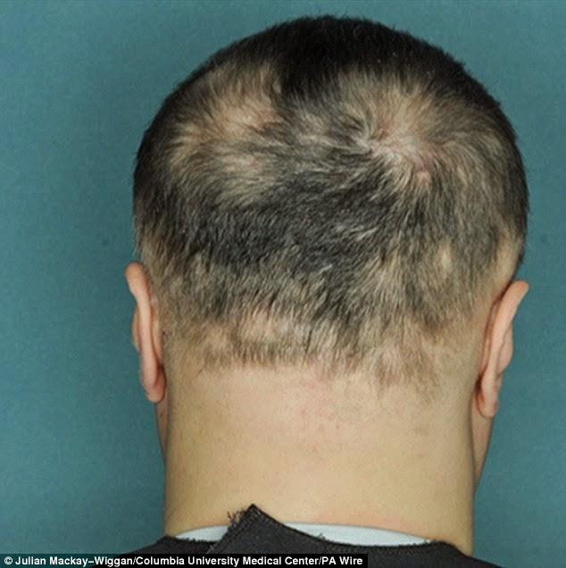 صورة لرأس مريض أثناء العلاج