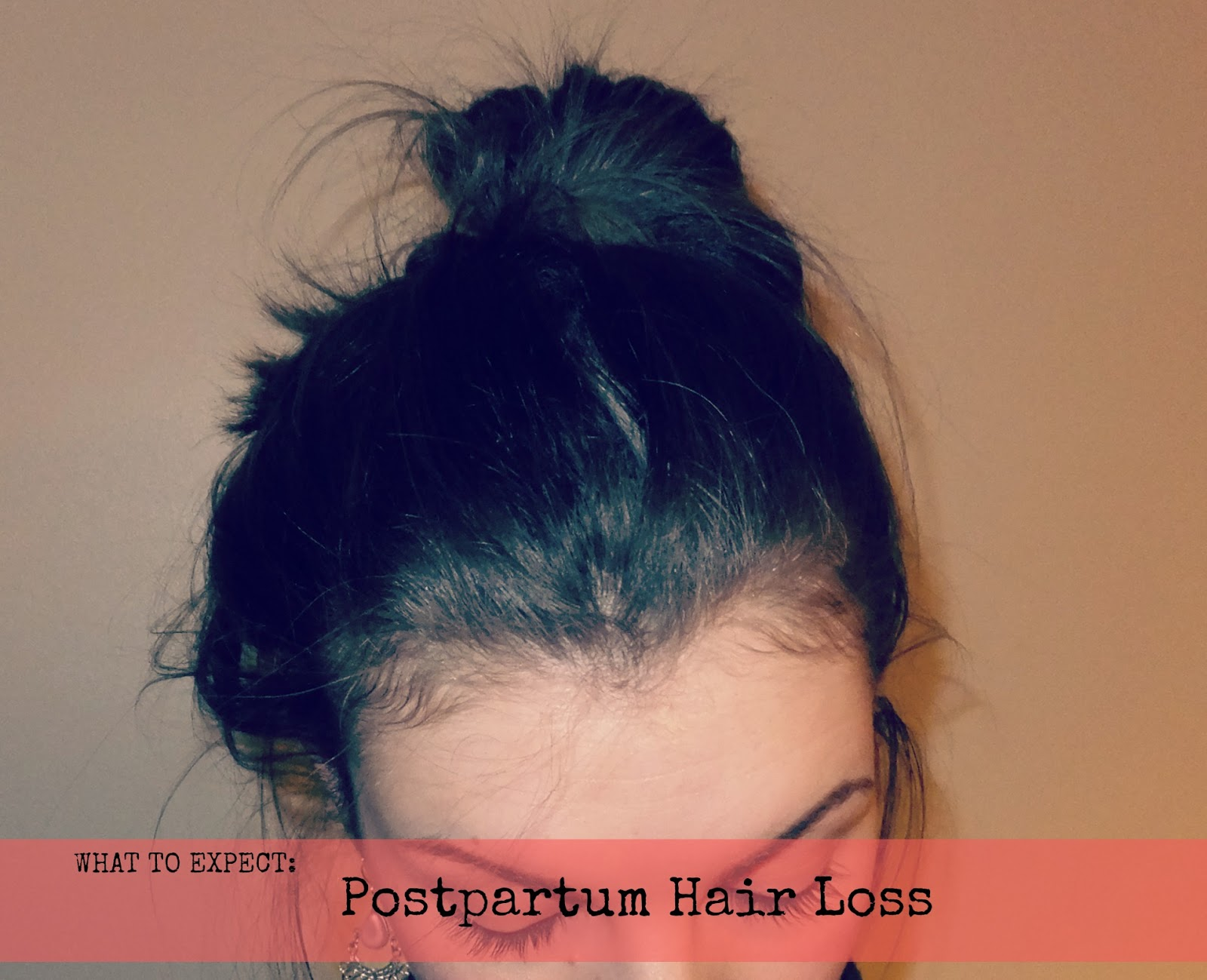 Fern Blush Postpartum Hair Loss What To Expect