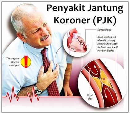 Terapi Pengobatan Jantung Koroner Alamiah