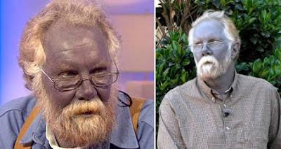 enfermedades extrañas, raras, argiria, persona azul, pitufos, Paul Karason