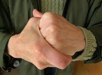 أضرار طقطقة اليد والأطراف!