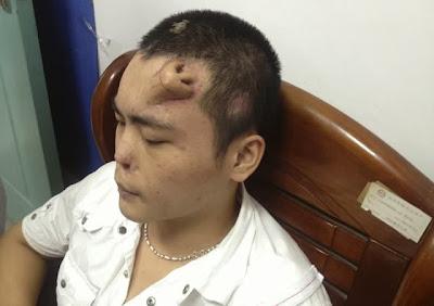 Científicos chinos cultivan nariz en frente de paciente