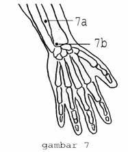 gambar titik pijat titik akupuntur refleksi tangan