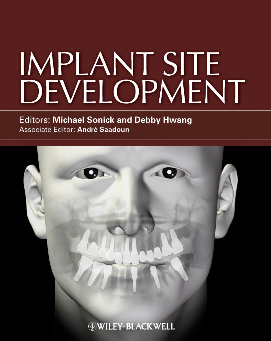 Dental Implant Free Ebook Download - Magazine cover