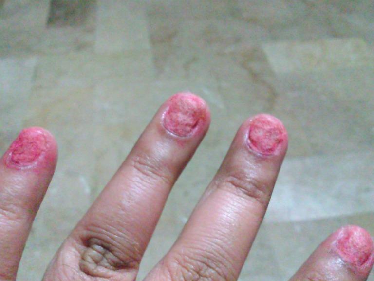 Warning Don T Use Fake Nails