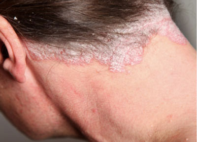 La infección secundaria a atopicheskom la dermatitis de la foto