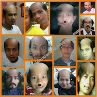 komunitas kepala botak