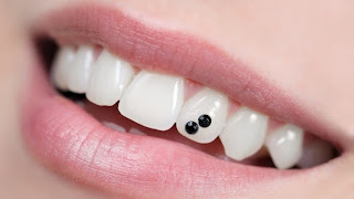 PIERCING DENTAL 1