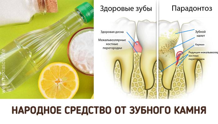 Полезные советы: Как удалить зубной камень в домашних условиях? Эффект заметен с первого раза!