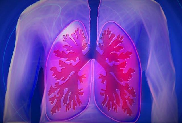 Câncer de pulmão assintomático, gera preocupação