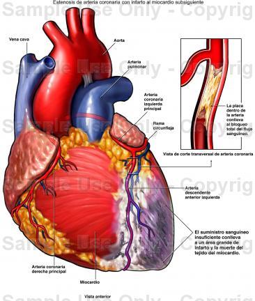 Atendimento rápido após infarto é fundamental para evitar maiores danos ao coração.