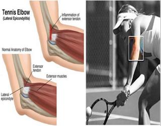 Cedera Tenis Lapang