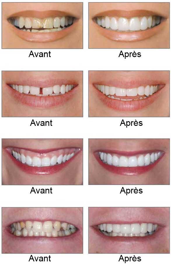 dent avant apres appareil dentaire