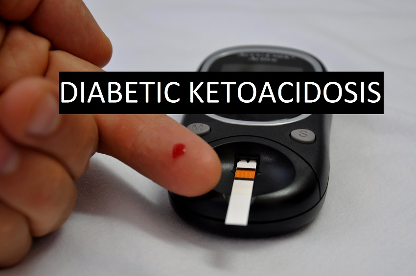 diabetic ketoacidosis Diabetic ketoacidosis (dka) – a condition brought on by inadequate insulin – is  a life-threatening emergency usually affecting people with type 1 diabetes.