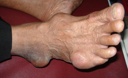 medication for treatment of gout what causes gout toe acute gouty arthritis guidelines