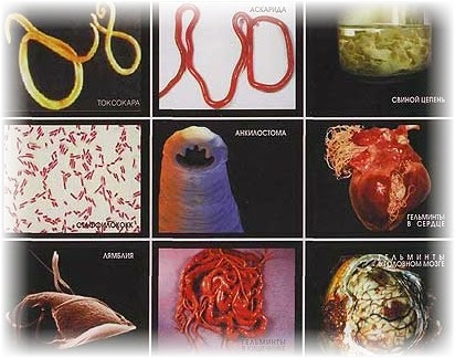 диагностика наличия паразитов в организме человека лечение