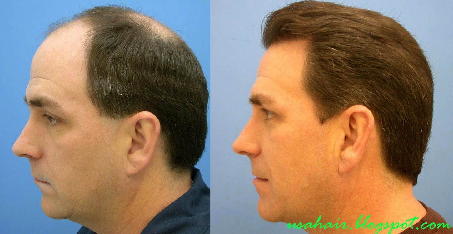 Are you interested in having hair transplant in Turkey? Hair transplant problems pictures