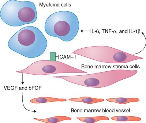 Multiple Myeloma Cancer ~ Myeloma Cancer, Symptoms ... Multiple Myeloma Cancer