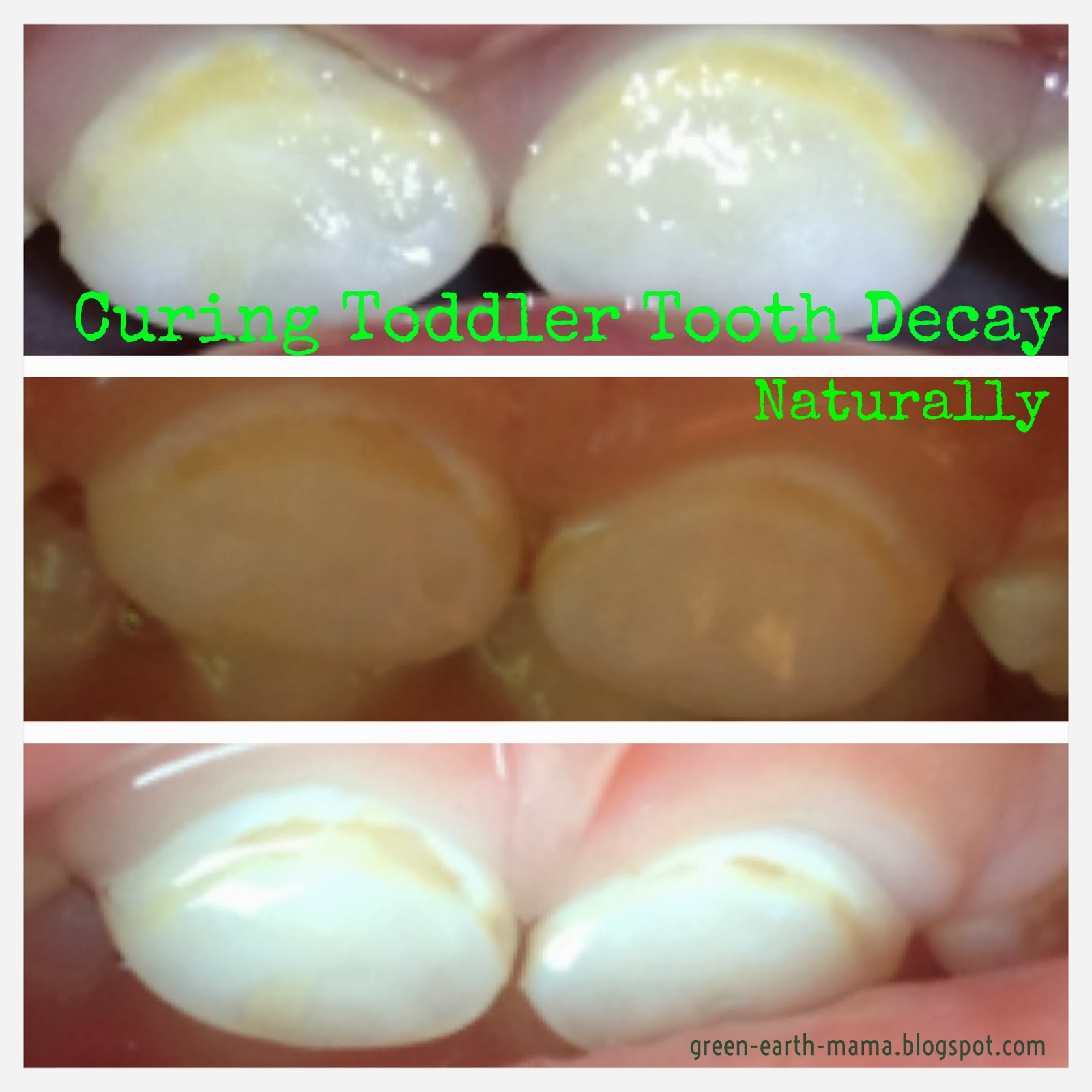 Tooth Decay Signs http://carrigar.com/old/signs-of-tooth ...