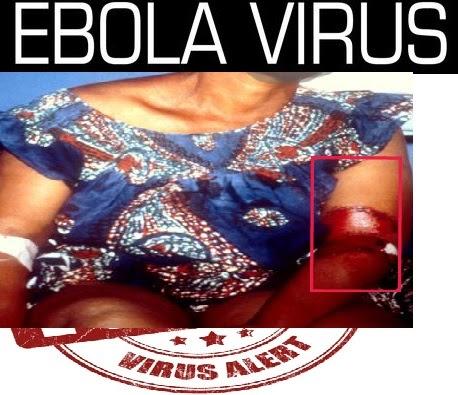 ebola virus news symptoms tratments