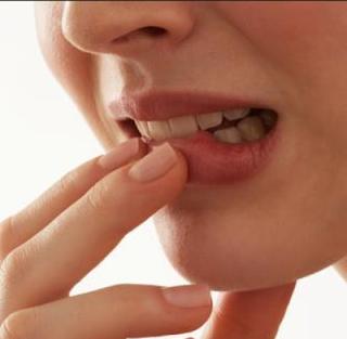 5 Tips Atasi Bibir Kering Saat Puasa