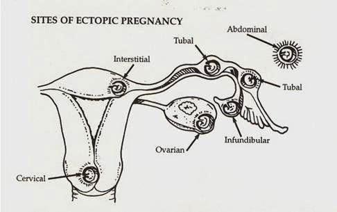 ovarian pregnancy