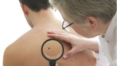 Cientistas usam vírus da herpes para curar câncer de pele