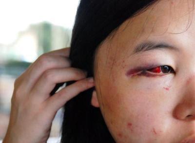Seorang pelajar sebuah universiti swasta terselamat daripada cubaan rogol di dalam tandas wanita universiti itu di Bukit Beruang di Melaka semalam.