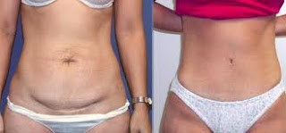 Tummy tuck plastic surgery in india