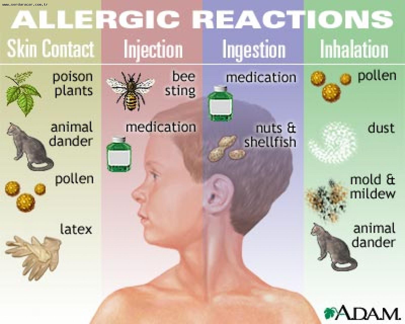 histamine allergie symptomen