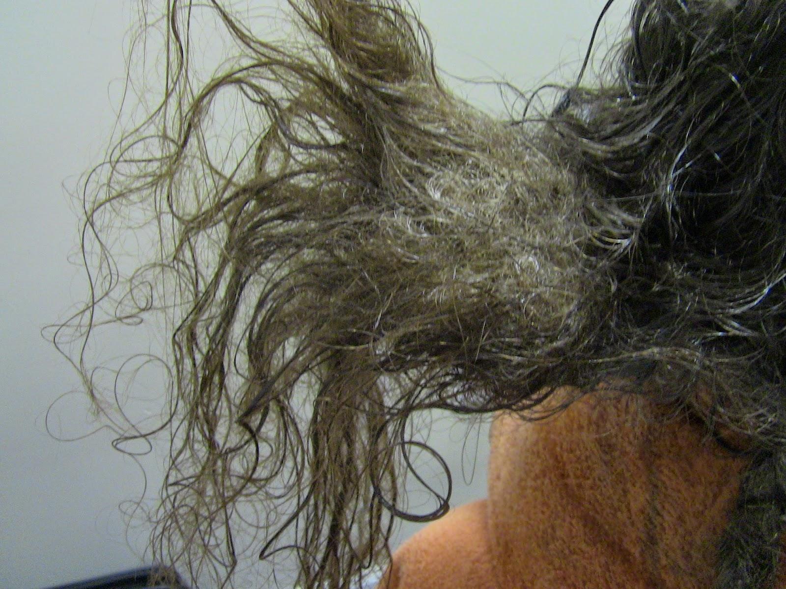 волосы заболевание спутанные