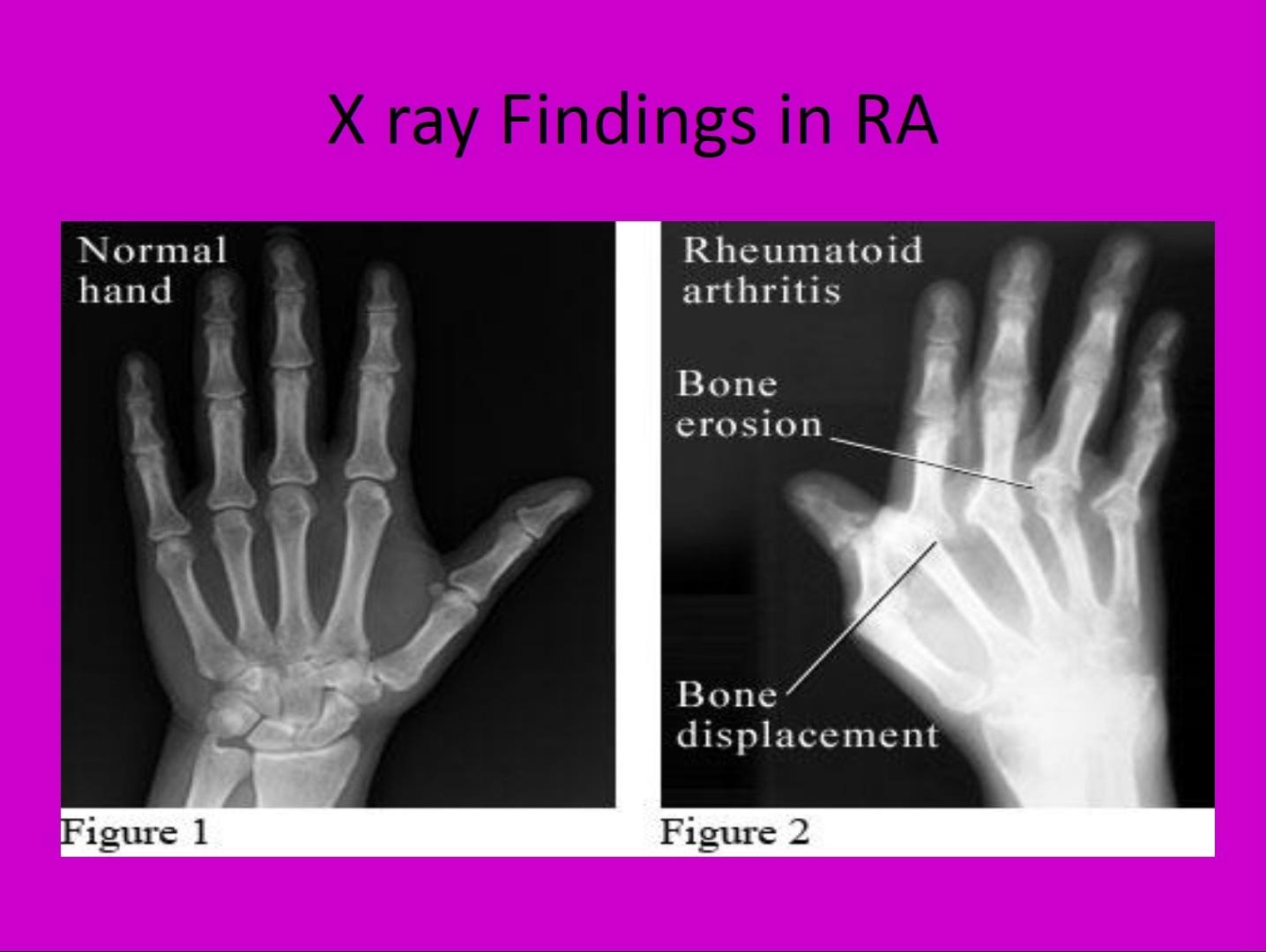 Ревматоидный артрит у детей что это такое фото