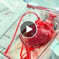 Aparelho mantém o coração humano batendo,mesmo fora do corpo