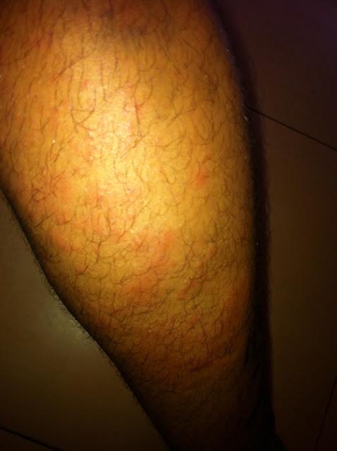 Salpullidos en la pierna de Antonio