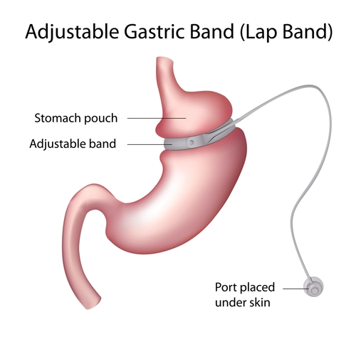 Image of: type of lap band surgery performed in Oklahoma City by Summit Medical Center