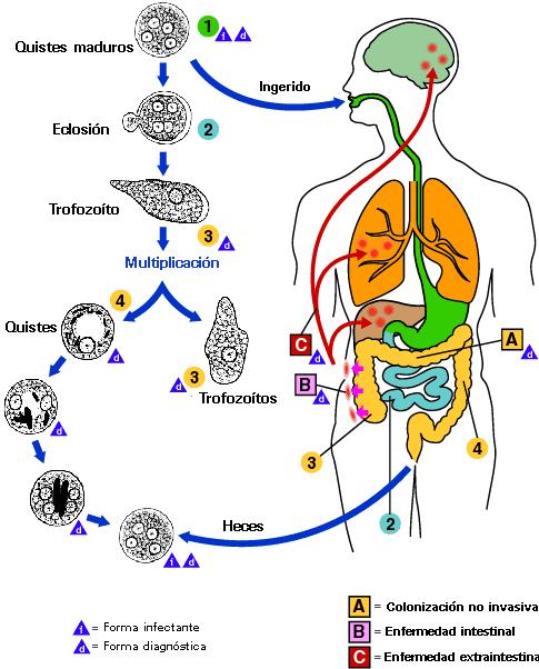 Todo sobre la amibiasis intestinal