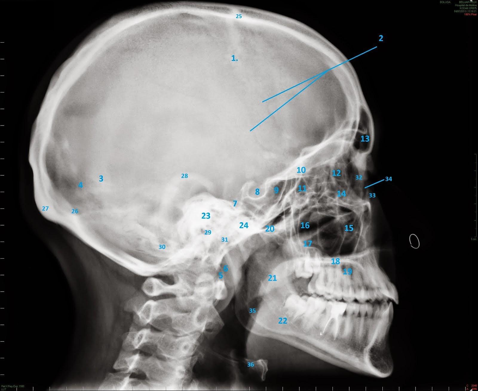 E-Anatomía Odontológica: RX LATERAL
