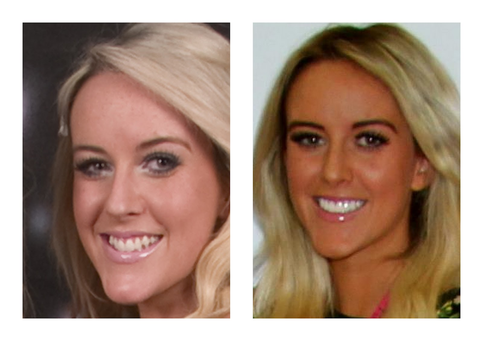 Veneers - The best decision I ever did make Veneers