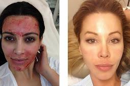 'Facial Darah' Mulai jadi Tren Kecantikan di Hollywood