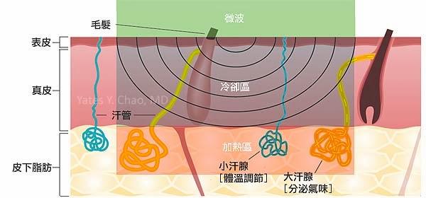 微波熱能MiraDry治療腋下狐臭和腋下多汗