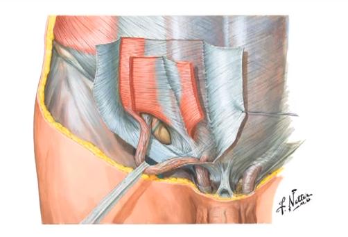 Abdominal Hernia Picture