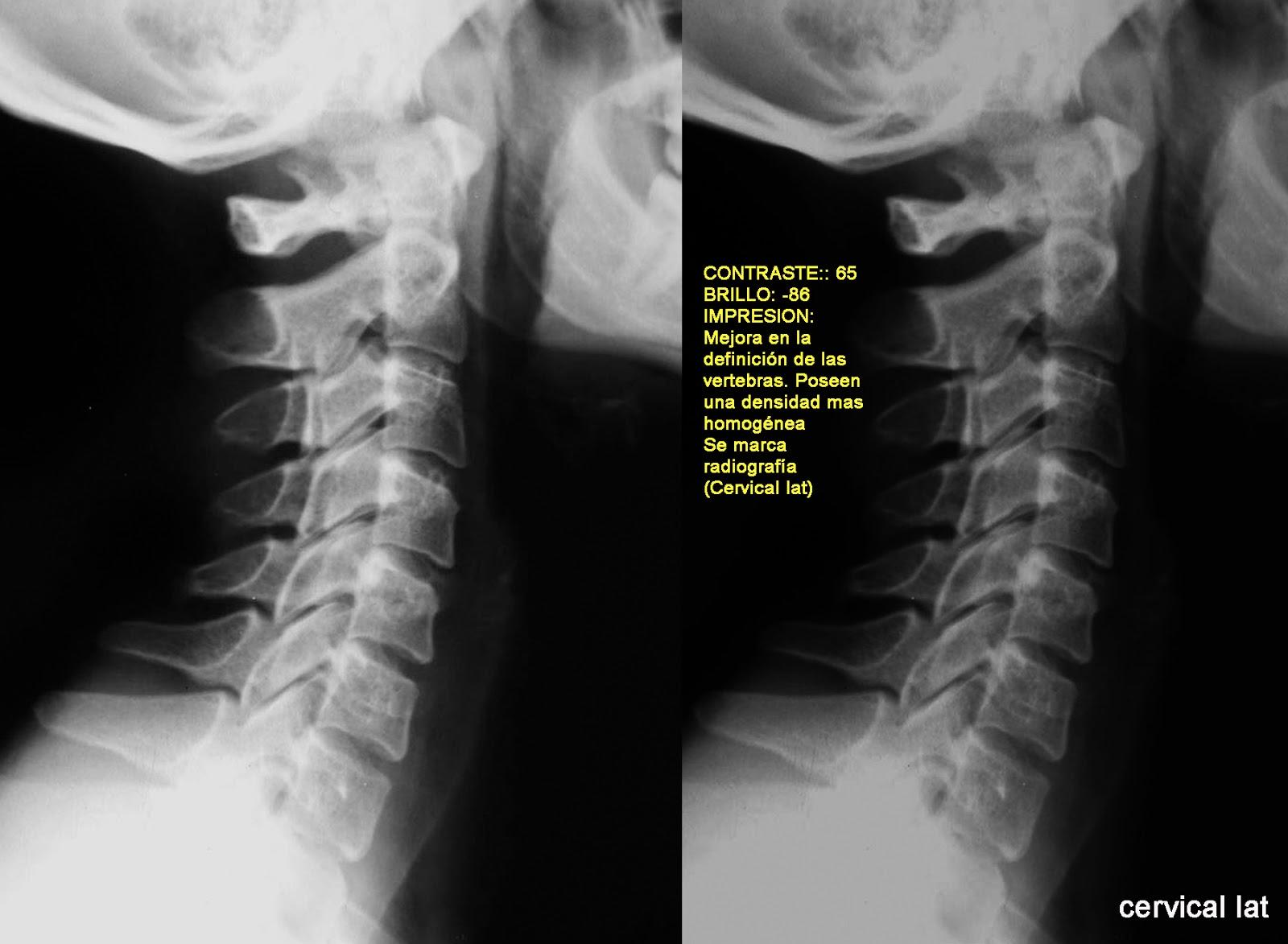 RadioLuz: Radiografía cervical lateral normal