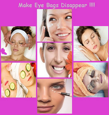 How to Get Rid of Puffy Eyes or under-eye circles?