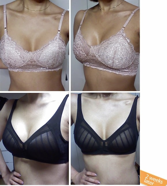 breast plastic surgery after photos-5
