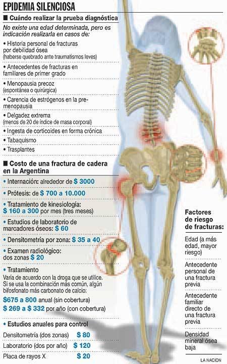 Plataforma Vibratoria y la Osteoporosis: 10/10/11