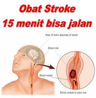 Obat Stroke Jantung